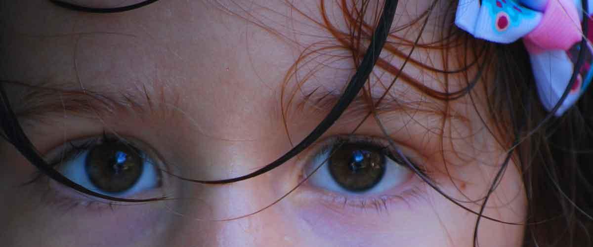 Girl with sweaty, warm brow